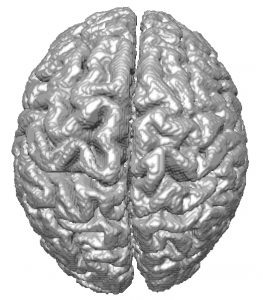 Brain segmented from synthetic MR images (generated at BrainWeb) on the GPU using OpenCL and the Level Set method